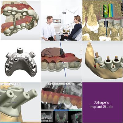 3Shapes Implantat Studio