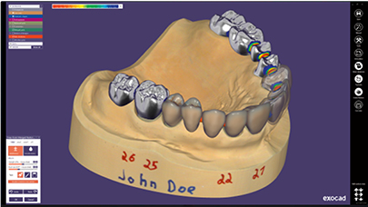exocad DentalCAD (Basis)